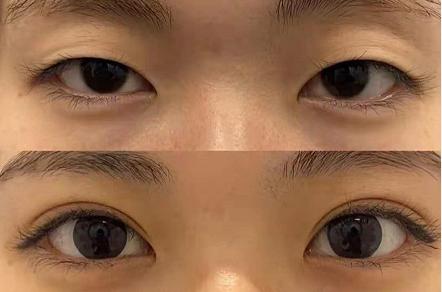 上海九院做双眼皮哪个医生好