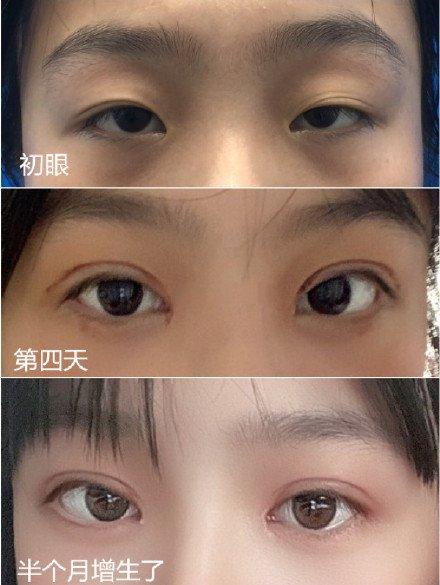 成都最有名的割双眼皮医生是哪个