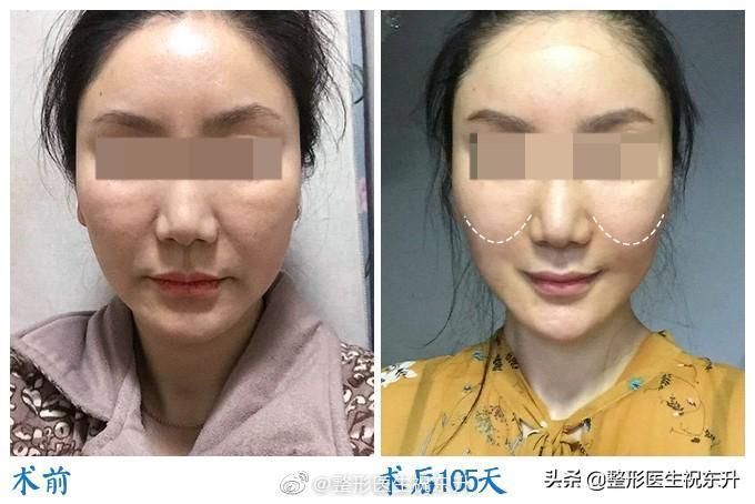 祝东升_北京中医药大学东方医院整形美容科主任 五层面部提升专家